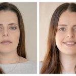 צלמת תיעדה 33 נשים לפני ואחרי שהפכו לאמא